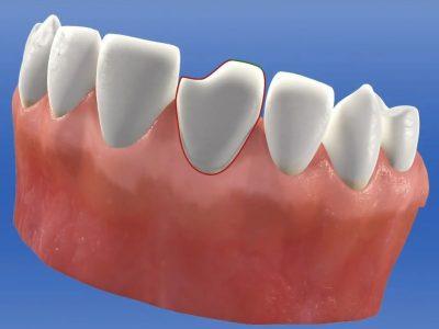 CAD-CAM Reconstrucción de diente anterior con restauración directa1