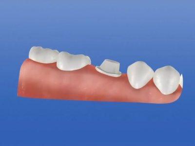 CAD-CAM Reposición protésica de diente con corona