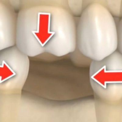 Consecuencias de la perdida de un diente
