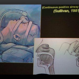 Curso apnea obstructiva del sueño Dr. Emilio Macias Escalada